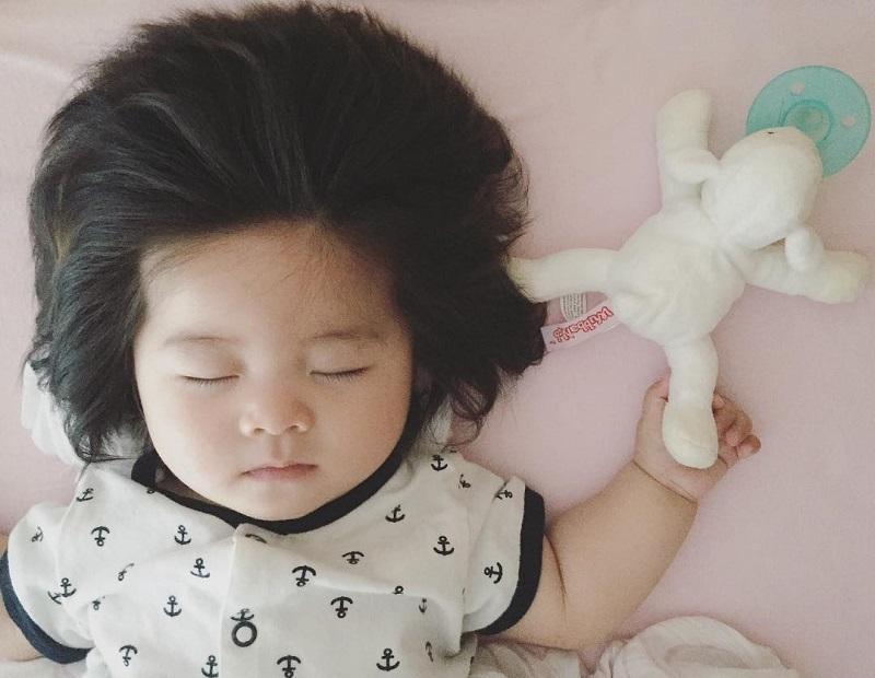 پرپشت شدن موی جنین