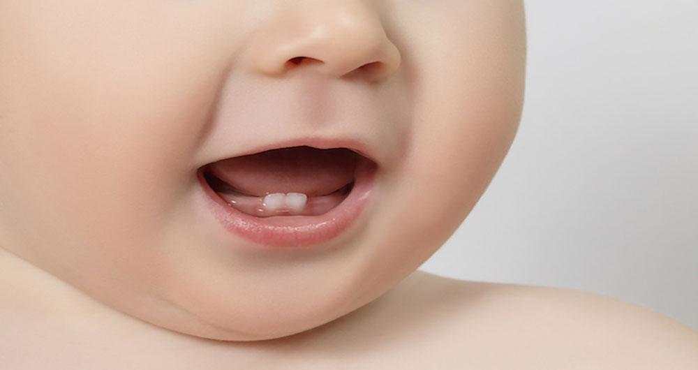 محافظت دندان شیری
